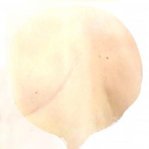 cicatriser1